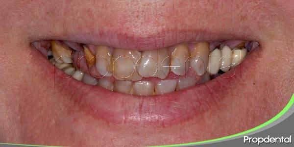 Mis dientes tienen una coloración anómala ¿Qué puede estar ocurriendo?