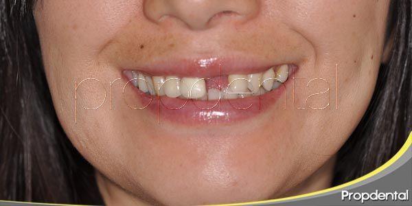 Pérdida de dientes en pacientes jóvenes