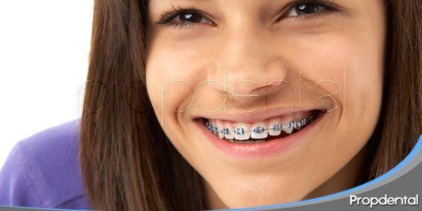Preocupaciones sobre Ortodoncia en la adolescencia