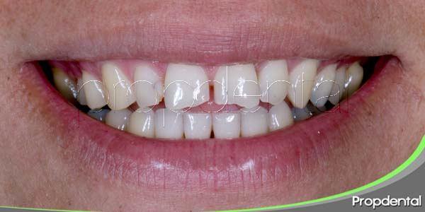¿Qué es el bruxismo? ¿Se han desgastado mis dientes?