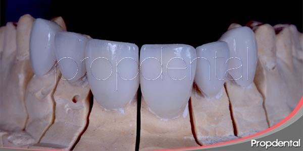 Recuperar la estética a través de carillas dentales