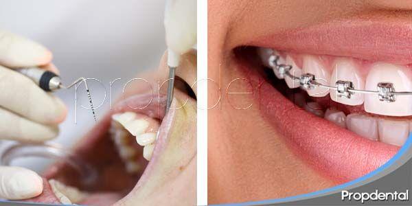 Relación entre periodoncia y ortodoncia