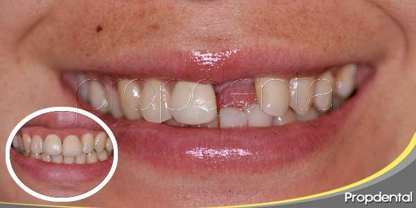Sustituir la pérdida de un diente con implante