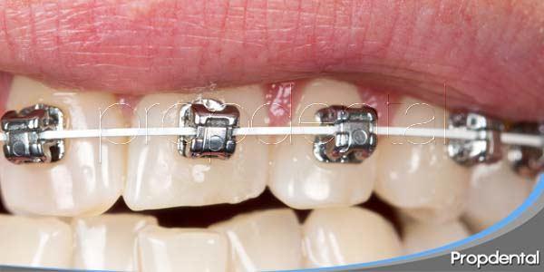 Técnicas de Ortodoncia estética: El sistema Damon