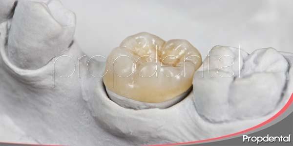 Aprovecha las coronas dentales provisionales