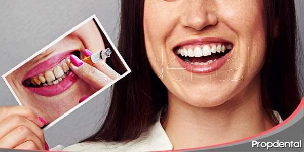 evitar las manchas en los dientes