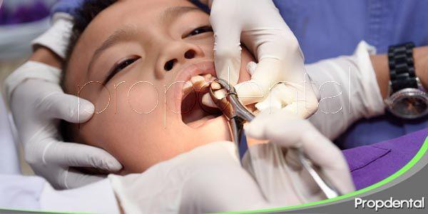 ¿En qué casos se indica una exodoncia?