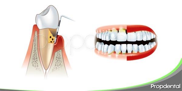 Explicando la enfermedad periodontal