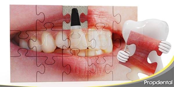 Implantes dentales: recupera la confianza en tu sonrisa