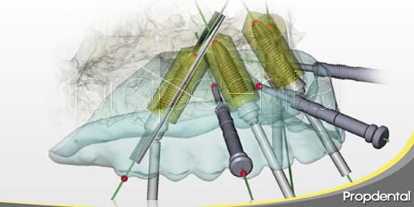 Los beneficios de NobelGuide, la cirugía guiada