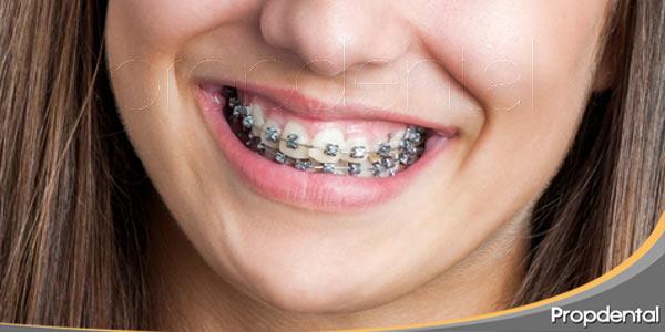 Los-diferentes-tipos-de-brackets-en-Ortodoncia
