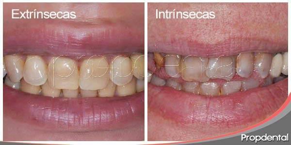 Manchas dentales: manchas intrínsecas y las manchas extrínsecas