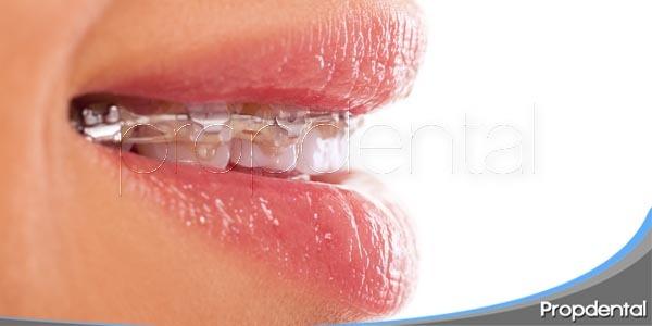 Ortodoncia Multidisciplinar: ¿En qué consiste?
