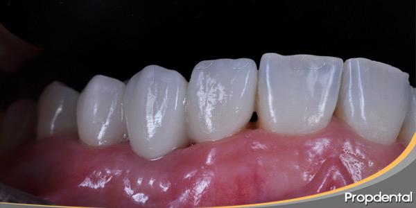 Carillas-dentales--Carillas-dentales-E-MAX