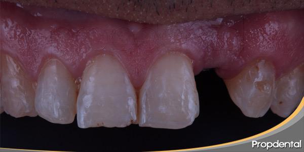 Como-actuar-ante-la-pérdida-de-un-diente