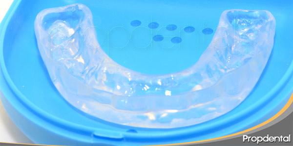Cómo-afectan-las-parafunciones-a-los-implantes-dentales