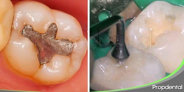 Diferencias entre empaste metálico y empaste de resina