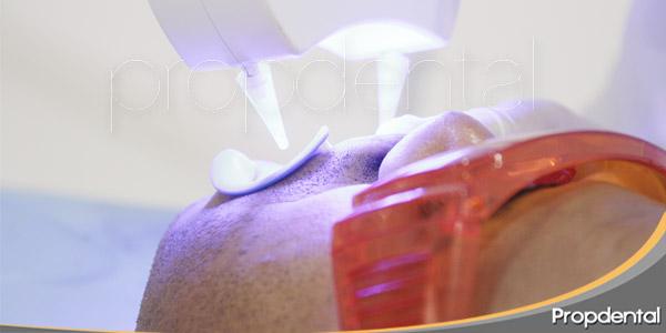 Dudas-frecuentes-del-blanqueamiento-dental