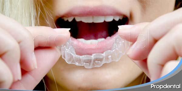 La ortodoncia que busca el paciente adulto