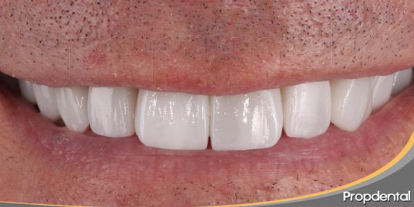 Nuevos-dientes-a-partir-de-células-de-la-encía