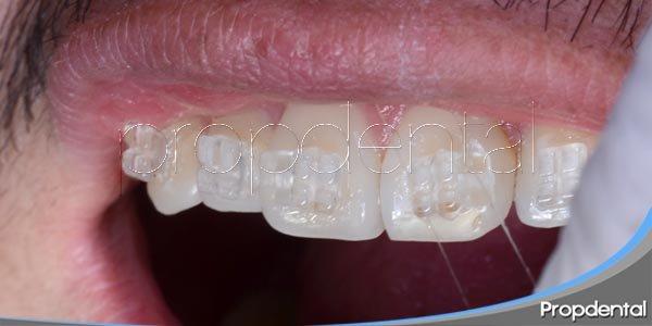 Ortodoncia estética: Brackets de zafiro