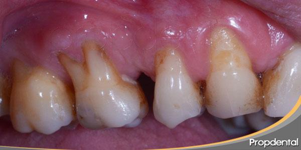 ¿cómo-manejar-las-enfermedades-periodontales?