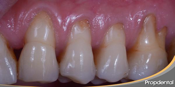 diferentes-formas-para-tratar-la-enfermedad-periodontal