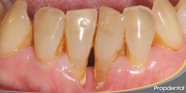 enfermedad-periodontal-renal-relacionadas