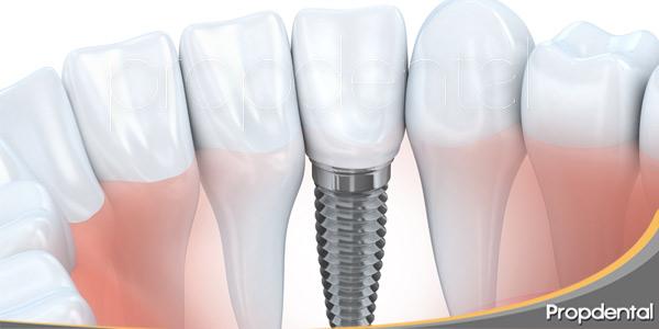 implantes-dentales-papel-que-debe-cumplir-paciente