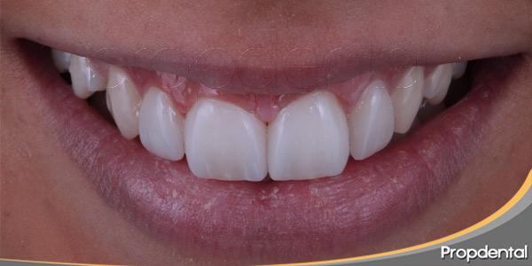 la-odontologia-estetica-de-riesgo
