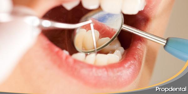que-puede-causar-la-placa-bacteriana-en-la-boca