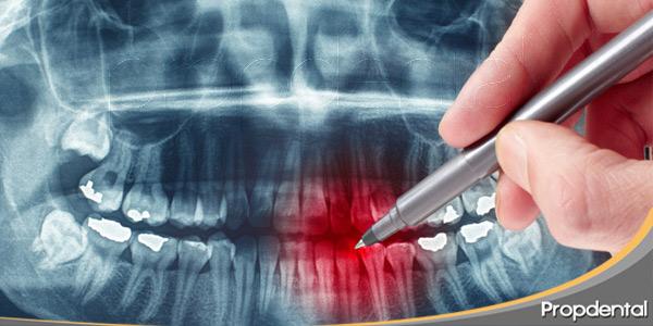 radiografía-dental-es-peligrosa-en-embarazadas