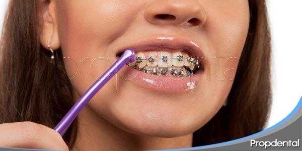 Higiene oral: La limpieza de los brackets