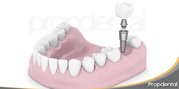 Implantes-dentales-en-la-zona-posterior