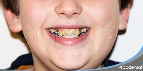 ¿Por qué se extraen piezas dentales en la Ortodoncia?