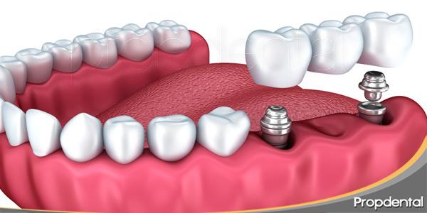 Rellena-el-edentumismo-con-un-puente-dental