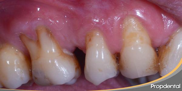 Sintomatología-de-las-enfermedades-periodontales