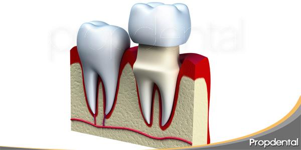 datos-coronas-dentales-ventajas-desventajas