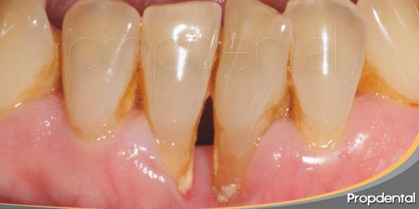 enfermedad-periodontal-como-tratamiento-conservador