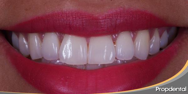 estética-dental-mejor-carillas-blanqueamiento-dental
