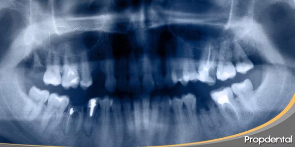 importancia-utilidad-de-las-radiografías-panorámicas