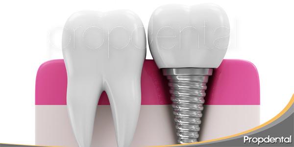 las-recomendaciones-útiles-antes-de-un-implante-dental
