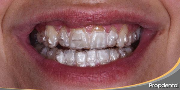 ortodoncia-Invisible-en-que-consiste-Invisalign