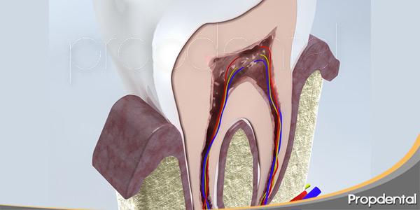 por-qué-se-infecta-el-nervio-dental