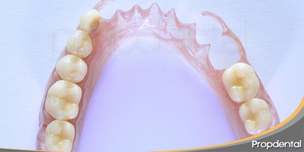 preguntas-frecuentes-sobre-prótesis-parciales-removibles