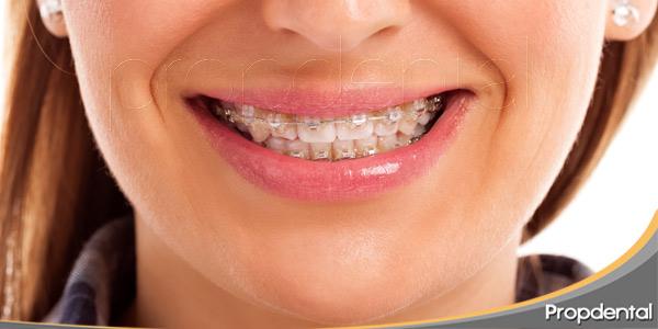 técnicas-ortodoncia-convencional-vs-lingual