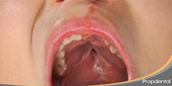Cuidado-dental-para-ninos-con-labio-leporino