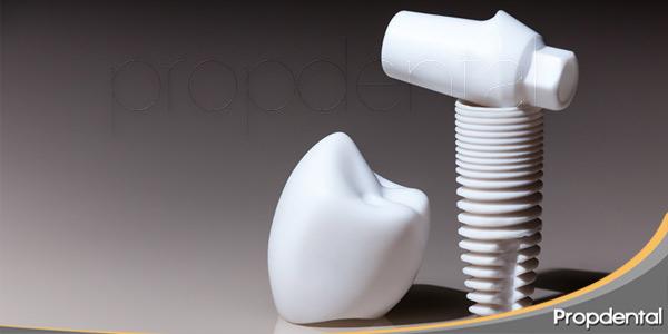 Implantes-dentales-como-es-secuencia-tratamiento