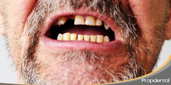 La-cirugía-periodontal-solución-pérdida-dientes