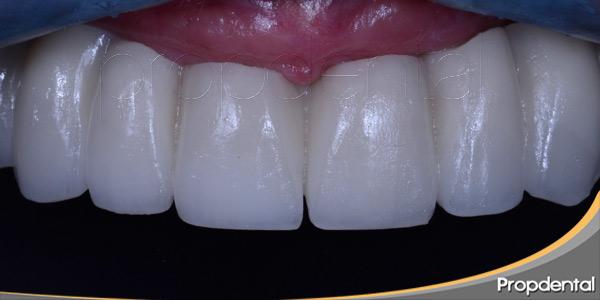 Prótesis-dentales-de-Zirconio-blancas